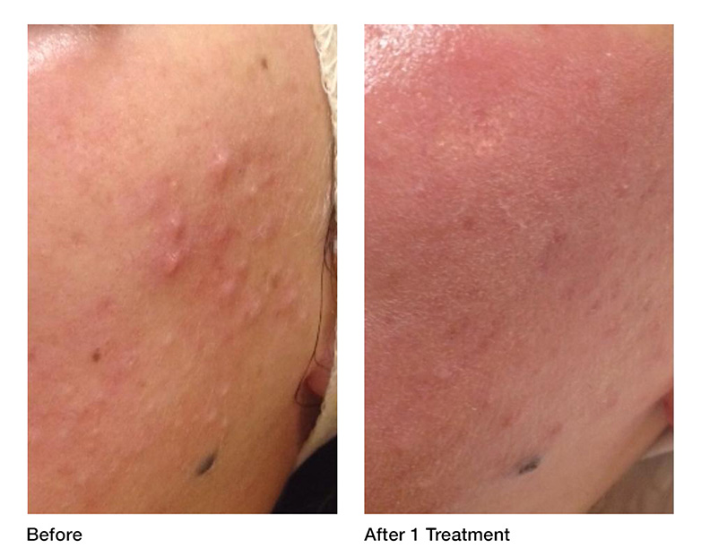 acne-management-before-after.jpg