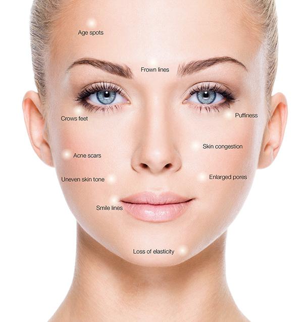 skin-microneedling-Treatable-Skin-Concerns.jpg