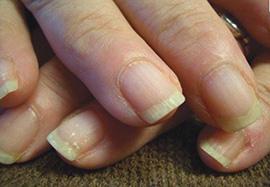 brittle-nails.jpg