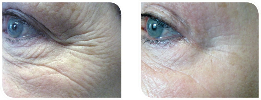 Herbal-Aktiv-Peel-before-after1.jpg