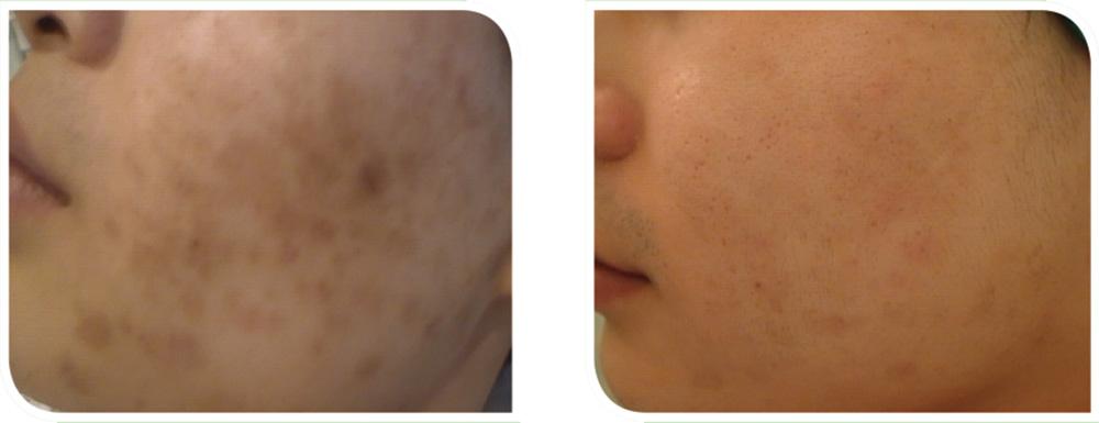 Herbal-Aktiv-Peel-before-after2.jpg