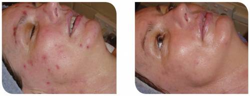 Herbal Aktiv Peel before and after