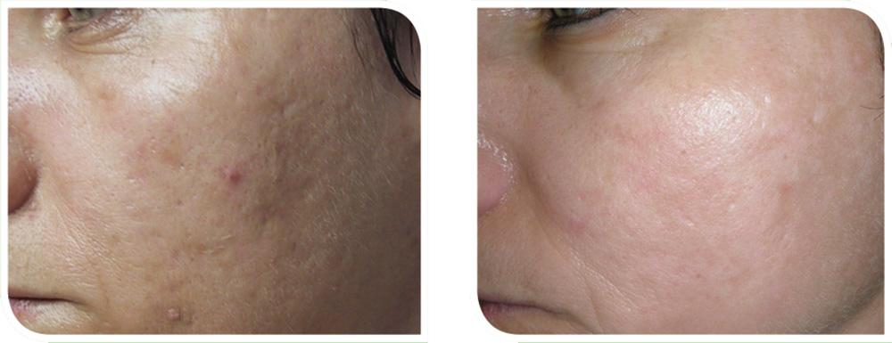 Herbal-Aktiv-Peel-before-after5.jpg